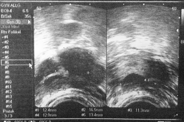 schwangerschaftstest nach icsi